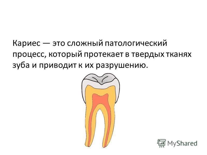 Кариес это сложный патологический процесс, который протекает в твердых тканях зуба и приводит к их разрушению.