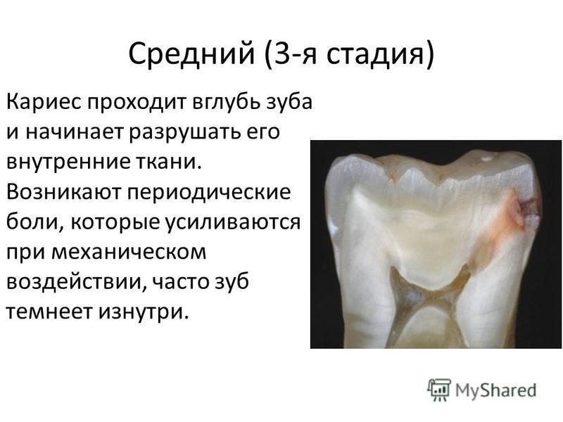 Средний (3-я стадия) Кариес проходит вглубь зуба и начинает разрушать его внутренние ткани. Возникают периодические боли, которые усиливаются при механическом воздействии, часто зуб темнеет изнутри.