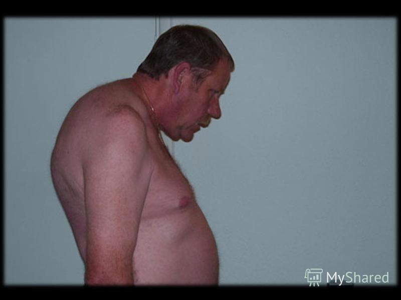 Здоровый сустав Начальные изменения Выраженные изменения Конечная стадия