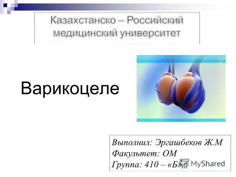 Варикоцеле Выполнил: Эргашбеков Ж.М Факультет: ОМ Группа: 410 – «Б»