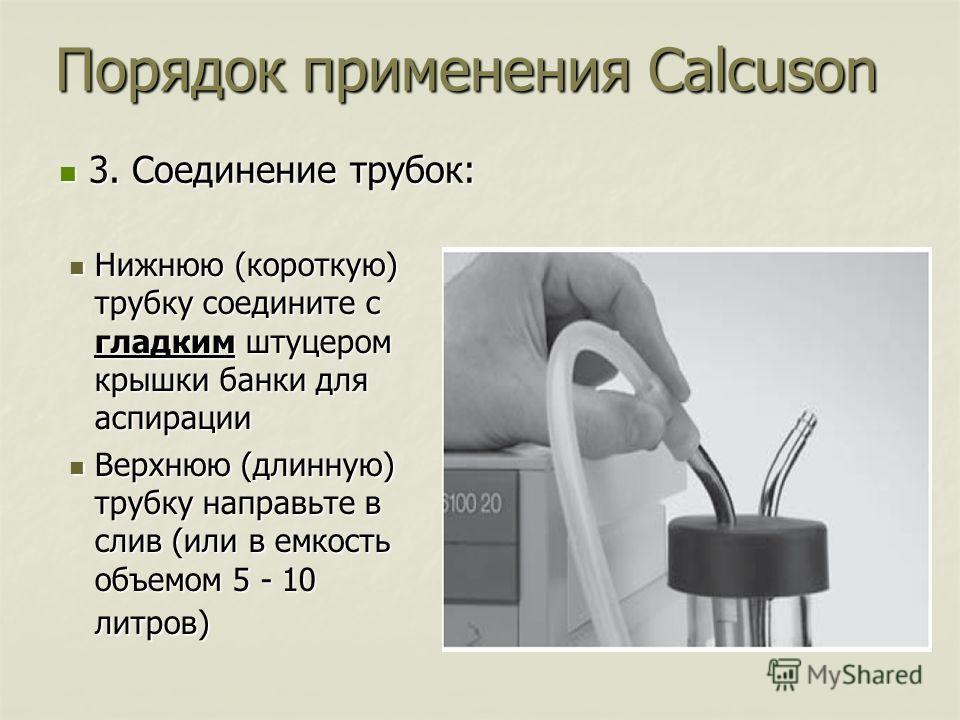 Нижнюю (короткую) трубку соедините с гладким штуцером крышки банки для аспирации Нижнюю (короткую) трубку соедините с гладким штуцером крышки банки для аспирации Верхнюю (длинную) трубку направьте в слив (или в емкость объемом 5 - 10 литров) Верхнюю