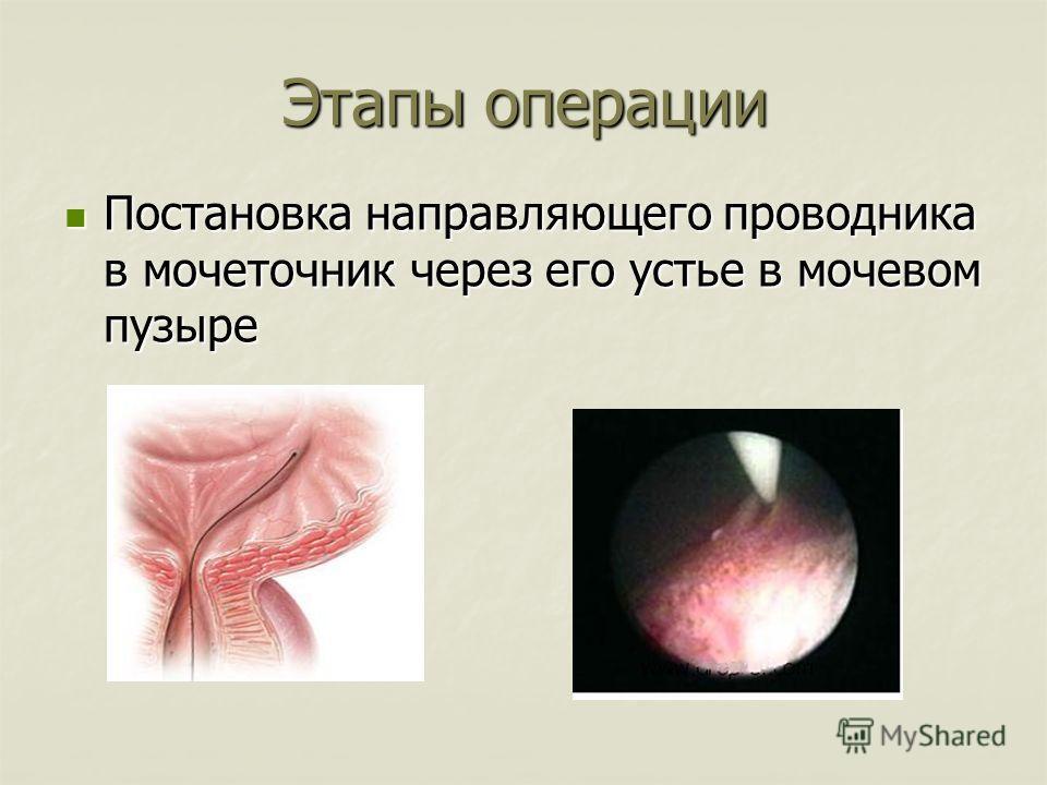 Этапы операции Постановка направляющего проводника в мочеточник через его устье в мочевом пузыре Постановка направляющего проводника в мочеточник через его устье в мочевом пузыре