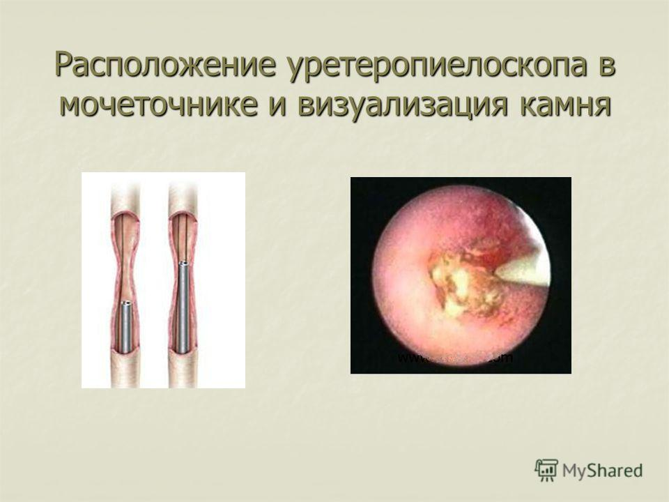 Расположение уретеропиелоскопа в мочеточнике и визуализация камня