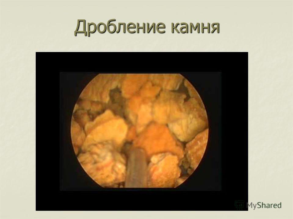 Дробление камня Дробление камня