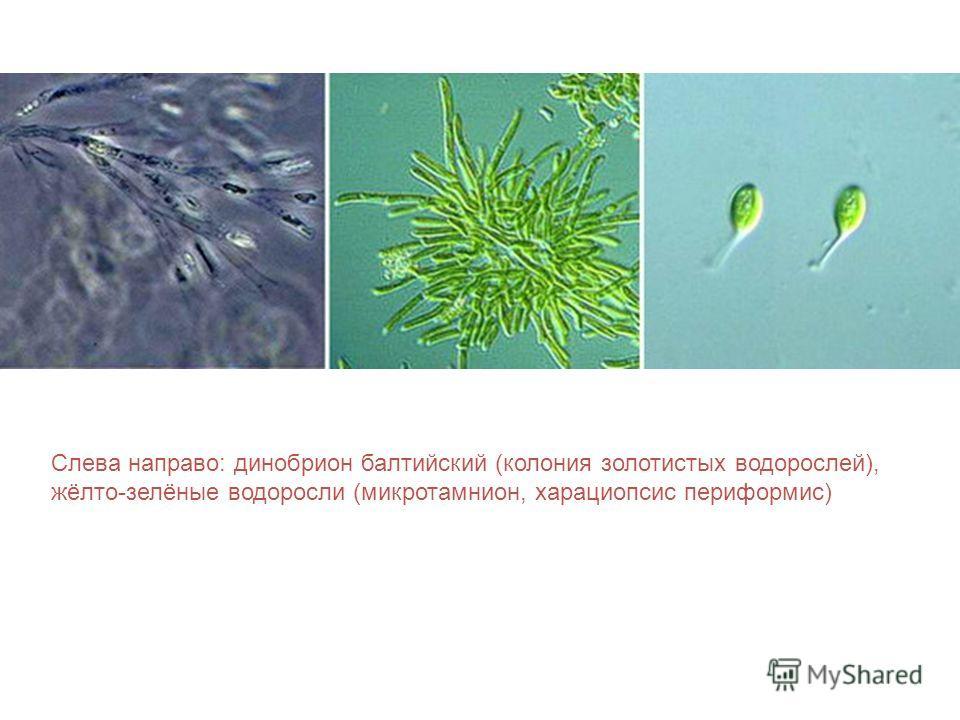 Слева направо: динобрион балтийский (колония золотистых водорослей), жёлто-зелёные водоросли (микротамнион, харациопсис периформис)