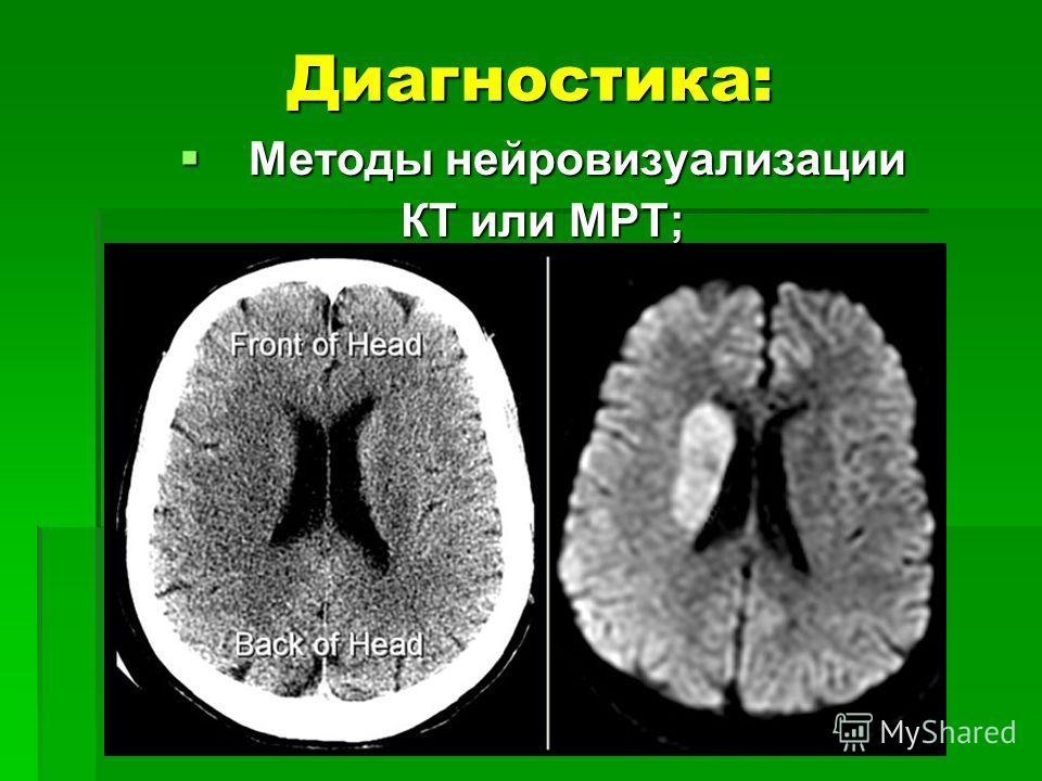 Диагностика: Методы нейровизуализации Методы нейровизуализации КТ или МРТ;
