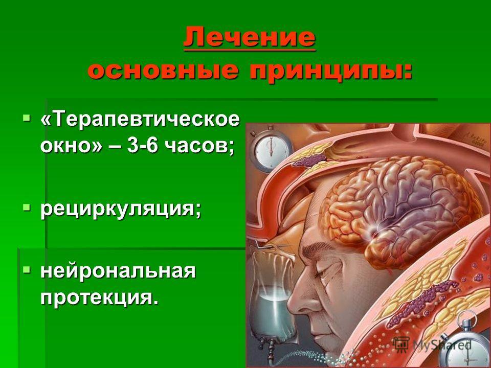 Лечение основные принципы: «Терапевтическое окно» – 3-6 часов; «Терапевтическое окно» – 3-6 часов; рециркуляция; рециркуляция; нейрональная протекция. нейрональная протекция.