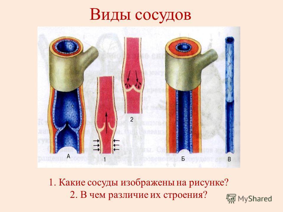 Какие сосуды изображены на рисунке 2