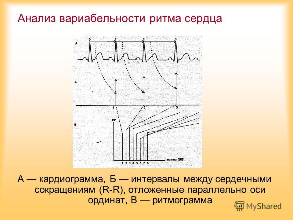 Анализ вариабельности ритма сердца А кардиограмма, Б интервалы между сердечными сокращениям (R-R), отложенные параллельно оси ординат, В ритмограмма