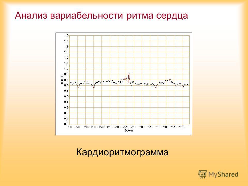 Анализ вариабельности ритма сердца Кардиоритмограмма