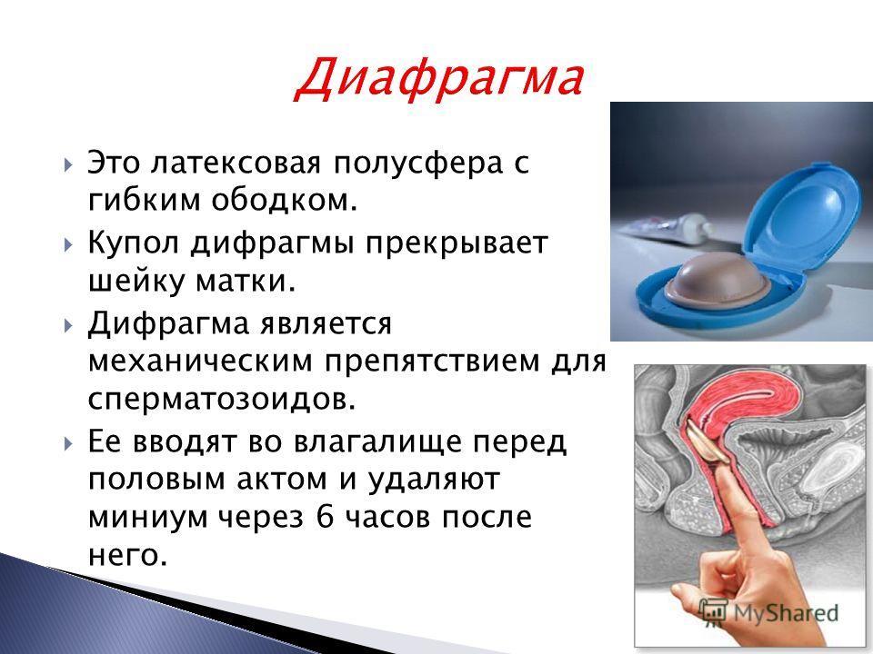 Это латексовая полусфера с гибким ободком. Купол дифрагмы прекрывает шейку матки. Дифрагма является механическим препятствием для сперматозоидов. Ее вводят во влагалище перед половым актом и удаляют миниум через 6 часов после него.