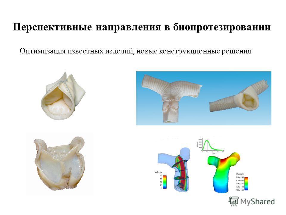 Перспективные направления в био протезировании Оптимизация известных изделий, новые конструкционные решения