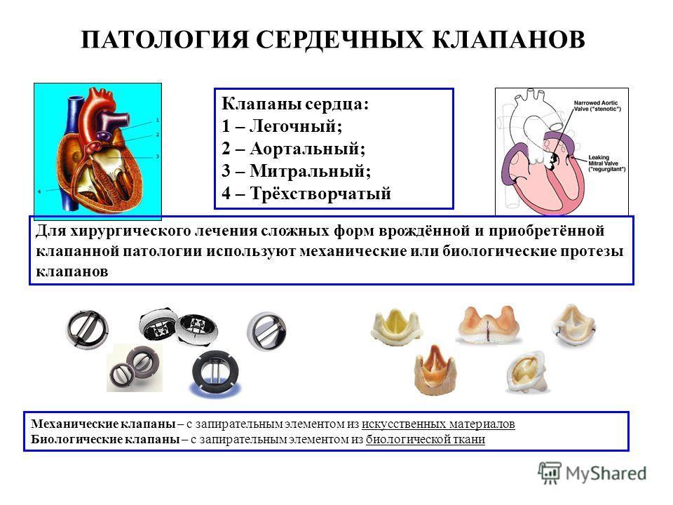 Клапаны сердца: 1 – Легочный; 2 – Аортальный; 3 – Митральный; 4 – Трёхстворчатый ПАТОЛОГИЯ СЕРДЕЧНЫХ КЛАПАНОВ Для хирургического лечения сложных форм врождённой и приобретённой клапанной патологии используют механические или биологические протезы кла