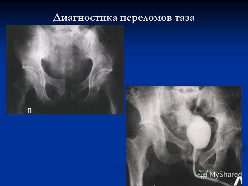 Диагностика переломов таза