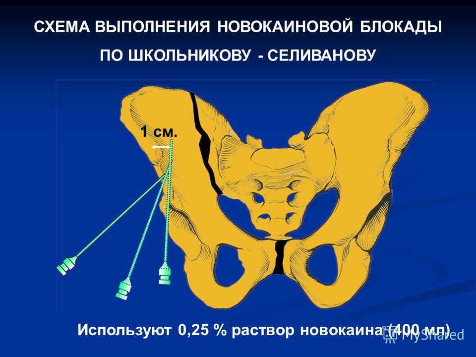 СХЕМА ВЫПОЛНЕНИЯ НОВОКАИНОВОЙ БЛОКАДЫ ПО ШКОЛЬНИКОВУ - СЕЛИВАНОВУ Используют 0,25 % раствор новокаина (400 мл) 1 см.