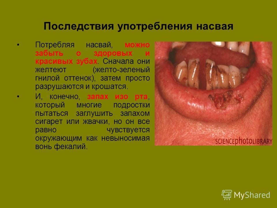 сперма изо рта причина: