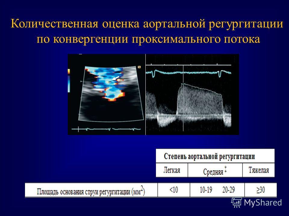 Количественная оценка аортальной регургитации по конвергенции проксимального потока
