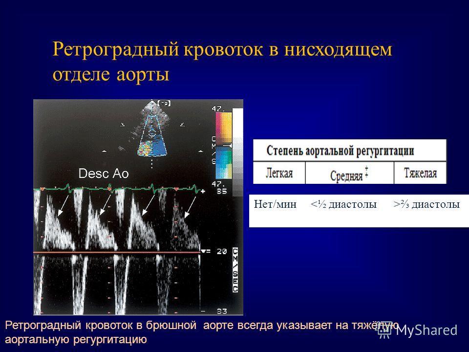 Ретроградный кровоток в нисходящем отделе аорты Нет/мин диастолы Ретроградный кровоток в брюшной аорте всегда указывает на тяжёлую аортальную регургитацию
