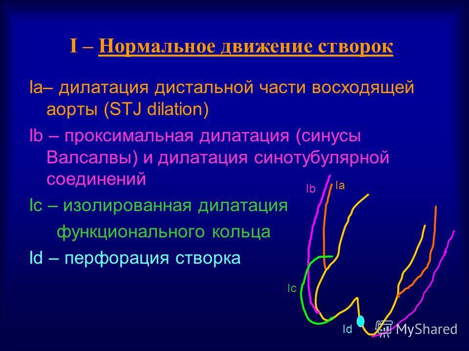 I – Нормальное движение створок Ia– дилатация дистальной части восходящей аорты (STJ dilation) Ib – проксимальная дилатация (синусы Валсалвы) и дилатация синотубулярной соединений Ic – изолированная дилатация функционального кольца Id – перфорация ст
