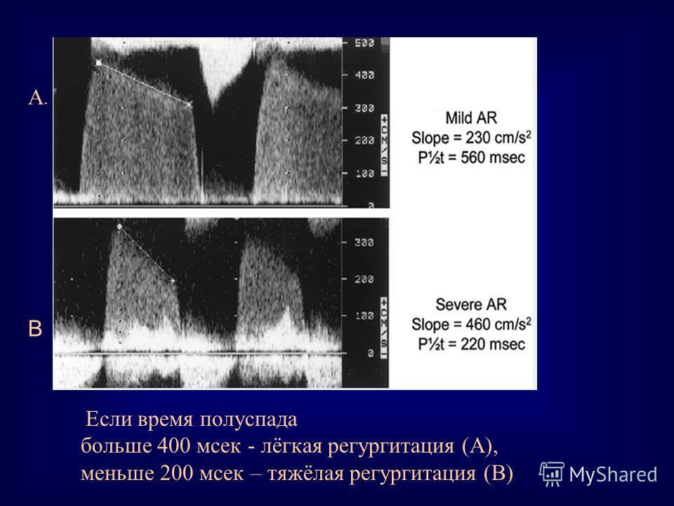 Если время полуспада больше 400 мсек - лёгкая регургитация (А), меньше 200 мсек – тяжёлая регургитация (В) A.A. В
