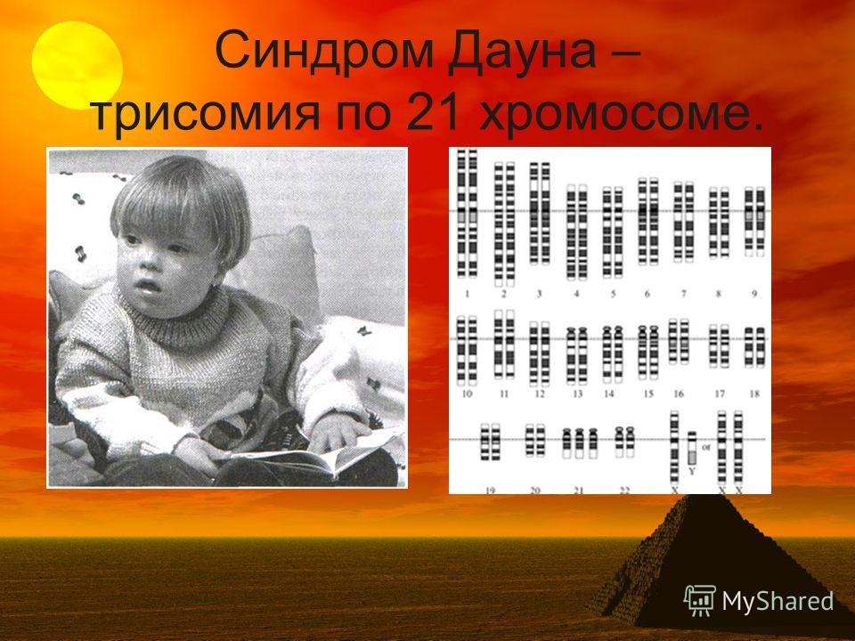 Синдром Дауна – трисомия по 21 хромосоме.