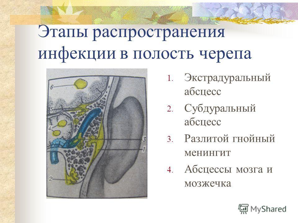 Этапы распространения инфекции в полость черепа 1. Экстрадуральный абсцесс 2. Субдуральный абсцесс 3. Разлитой гнойный менингит 4. Абсцессы мозга и мо