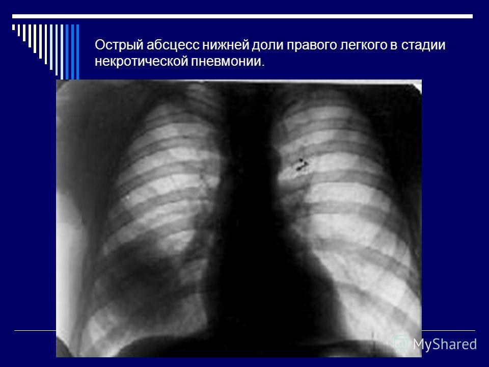 Острый абсцесс нижней доли правого легкого в стадии некротической пневмонии.