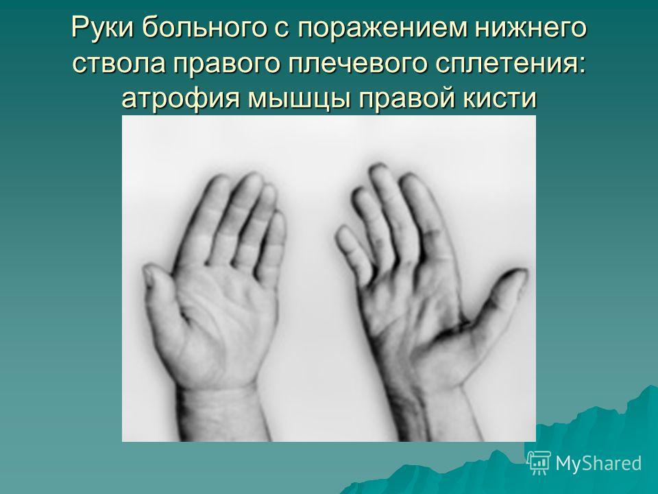 Руки больного с поражением нижнего ствола правого плечевого сплетения: атрофия мышцы правой кисти