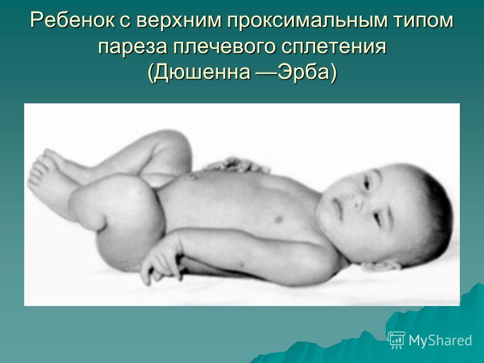 Ребенок с верхним проксимальным типом пареза плечевого сплетения (Дюшенна Эрба)