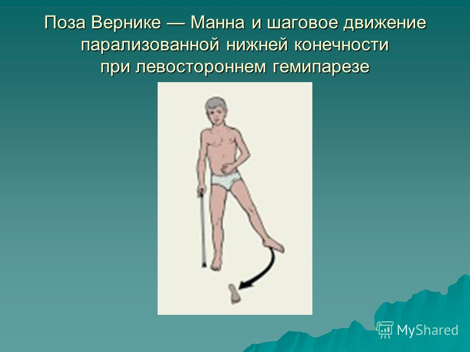 Поза Вернике Манна и шаговое движение парализованной нижней конечности при левостороннем гемипарезе