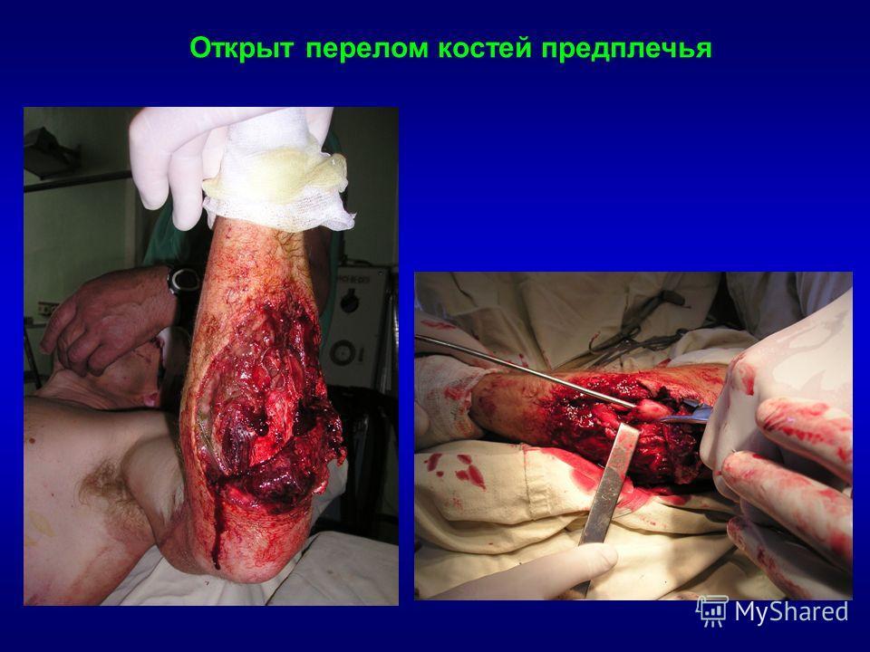 Открыт перелом костей предплечья