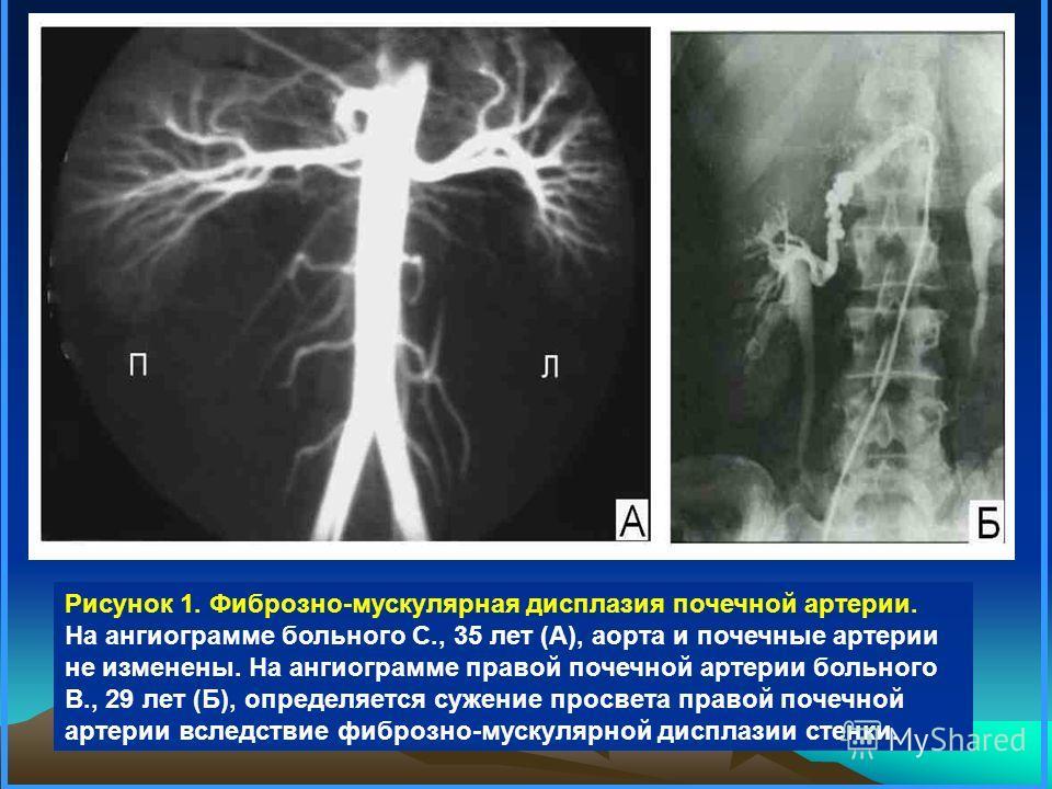 Рисунок 1. Фиброзно-мускулярная дисплазия почечной артерии. На ангиограмме больного С., 35 лет (А), аорта и почечные артерии не изменены. На ангиограмме правой почечной артерии больного В., 29 лет (Б), определяется сужение просвета правой почечной ар