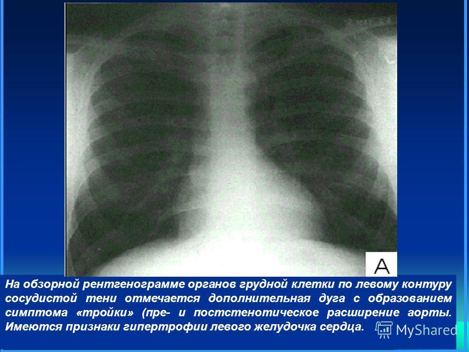 На обзорной рентгенограмме органов грудной клетки по левому контуру сосудистой тени отмечается дополнительная дуга с образованием симптома «тройки» (пре- и постстенотическое расширение аорты. Имеются признаки гипертрофии левого желудочка сердца.