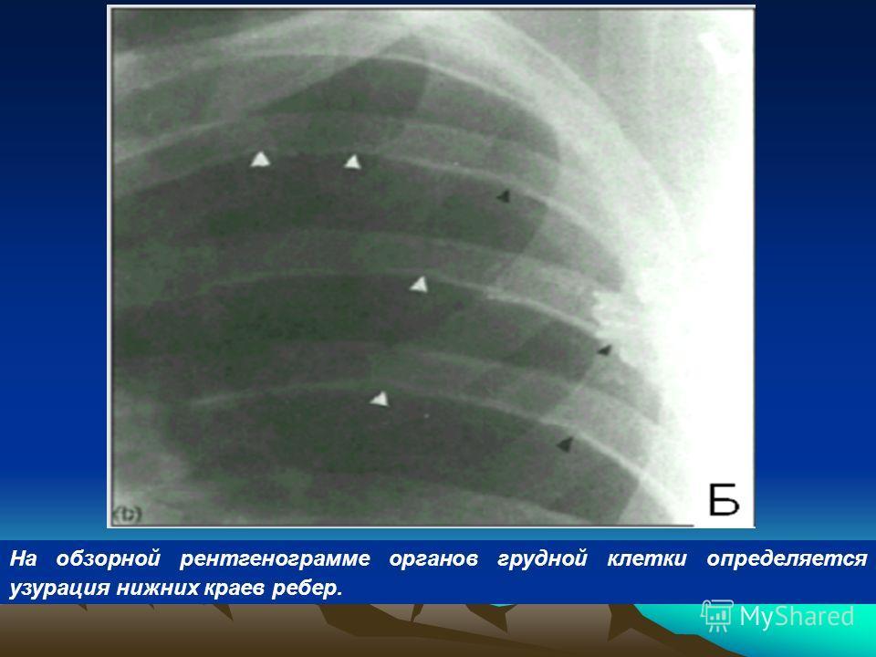 На обзорной рентгенограмме органов грудной клетки определяется узурация нижних краев ребер.