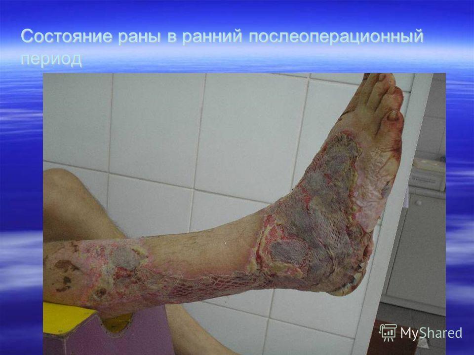 Состояние раны в ранний послеоперационный период