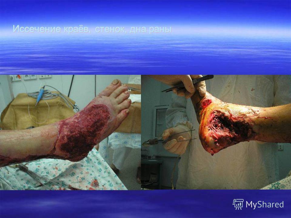 Иссечение краёв, стенок, дна раны