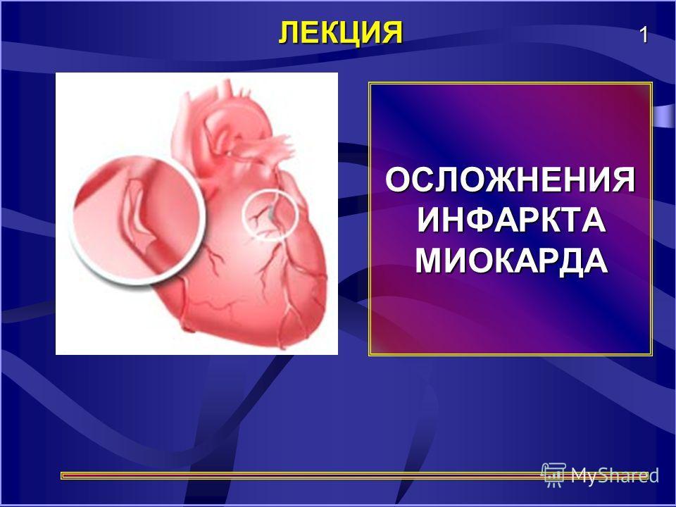 ОСЛОЖНЕНИЯ ИНФАРКТА МИОКАРДА ЛЕКЦИЯ 1