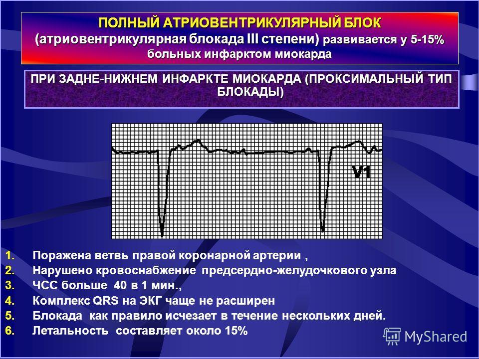 ПРИ ЗАДНЕ-НИЖНЕМ ИНФАРКТЕ МИОКАРДА (ПРОКСИМАЛЬНЫЙ ТИП БЛОКАДЫ) ПОЛНЫЙ АТРИОВЕНТРИКУЛЯРНЫЙ БЛОК (атриовентрикулярная блокада III степени) развивается у 5-15% больных инфарктом миокарда 1. Поражена ветвь правой коронарной артерии, 2. Нарушено кровоснаб