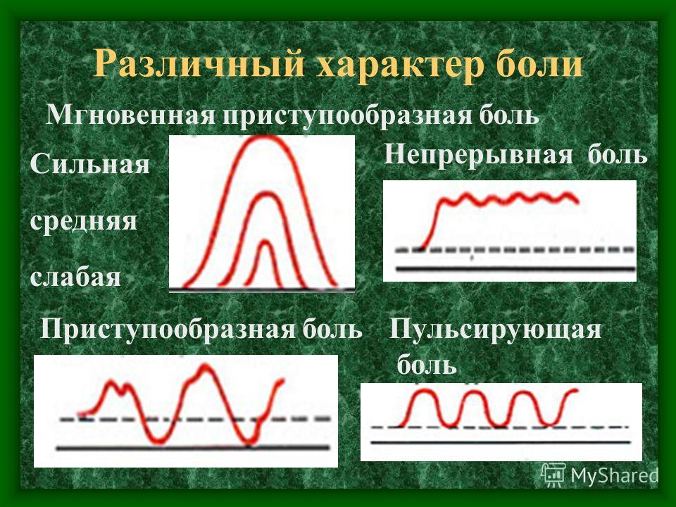 Различный характер боли Мгновенная приступообразная боль Сильная средняя слабая Приступообразная боль Непрерывная боль Пульсирующая боль