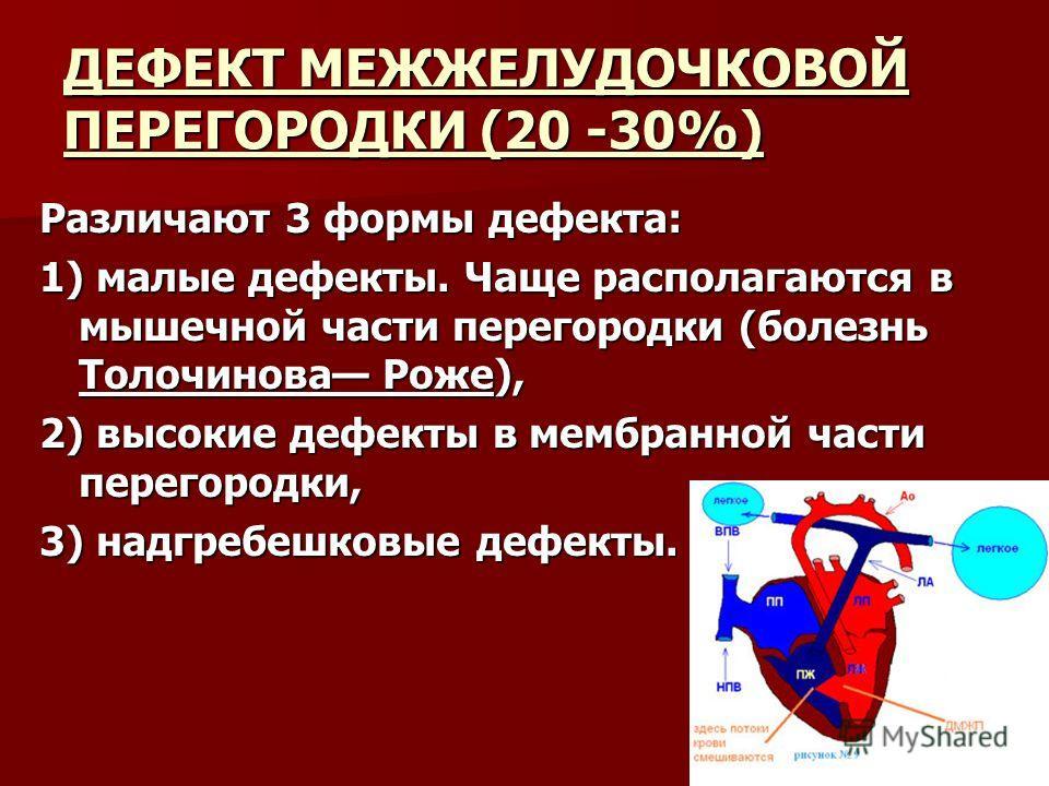 ДЕФЕКТ МЕЖЖЕЛУДОЧКОВОЙ ПЕРЕГОРОДКИ (20 -30%) Различают 3 формы дефекта: 1) малые дефекты. Чаще располагаются в мышечной части перегородки (болезнь Толочинова Роже), 2) высокие дефекты в мембранной части перегородки, 3) надгребешковые дефекты.