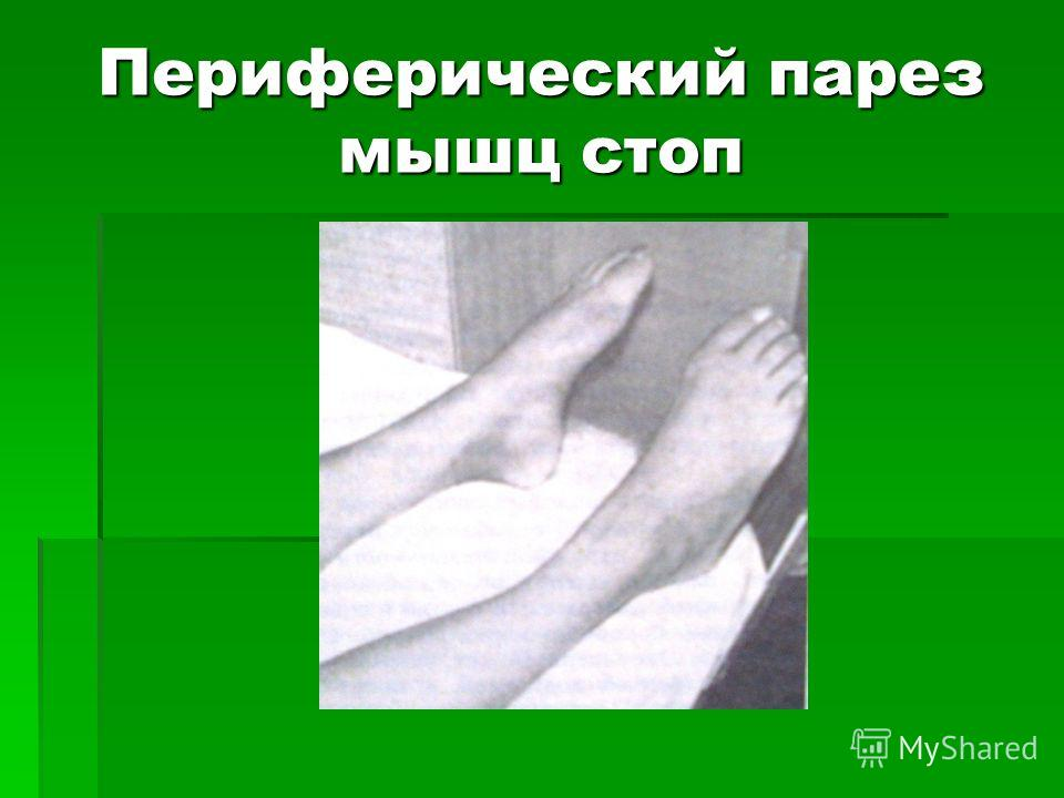 Периферический парез мышц стоп