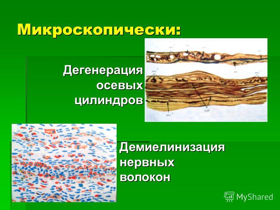 Микроскопически: Дегенерация осевых цилиндров Дегенерация осевых цилиндров Демиелинизация нервных волокон