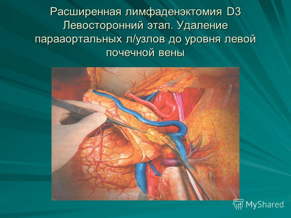 Расширенная лимфаденэктомия D3 Левосторонний этап. Удаление парааортальных л/узлов до уровня левой почечной вены