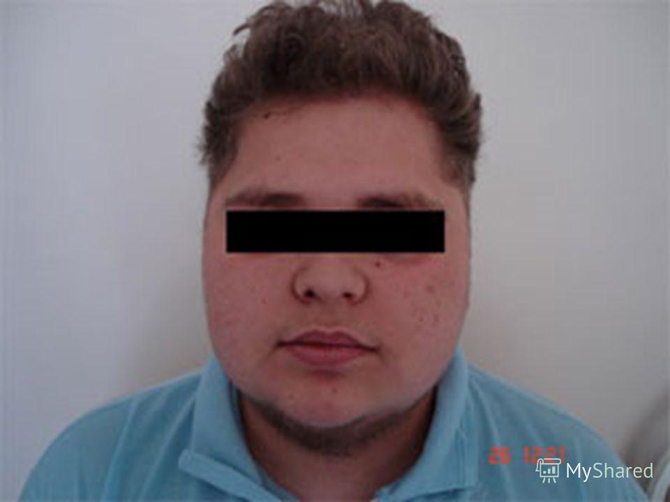 Синдром Фрелиха фото