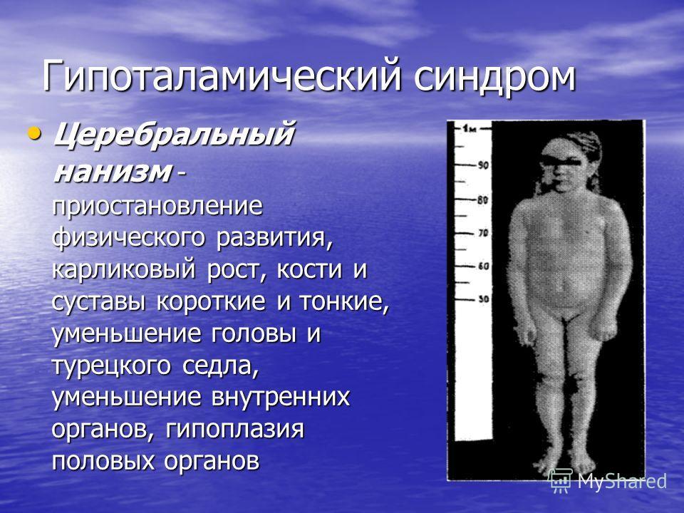 Гипоталамический синдром Церебральный нанизм - приостановление физического развития, карликовый рост, кости и суставы короткие и тонкие, уменьшение головы и турецкого седла, уменьшение внутренних органов, гипоплазия половых органов Церебральный наниз