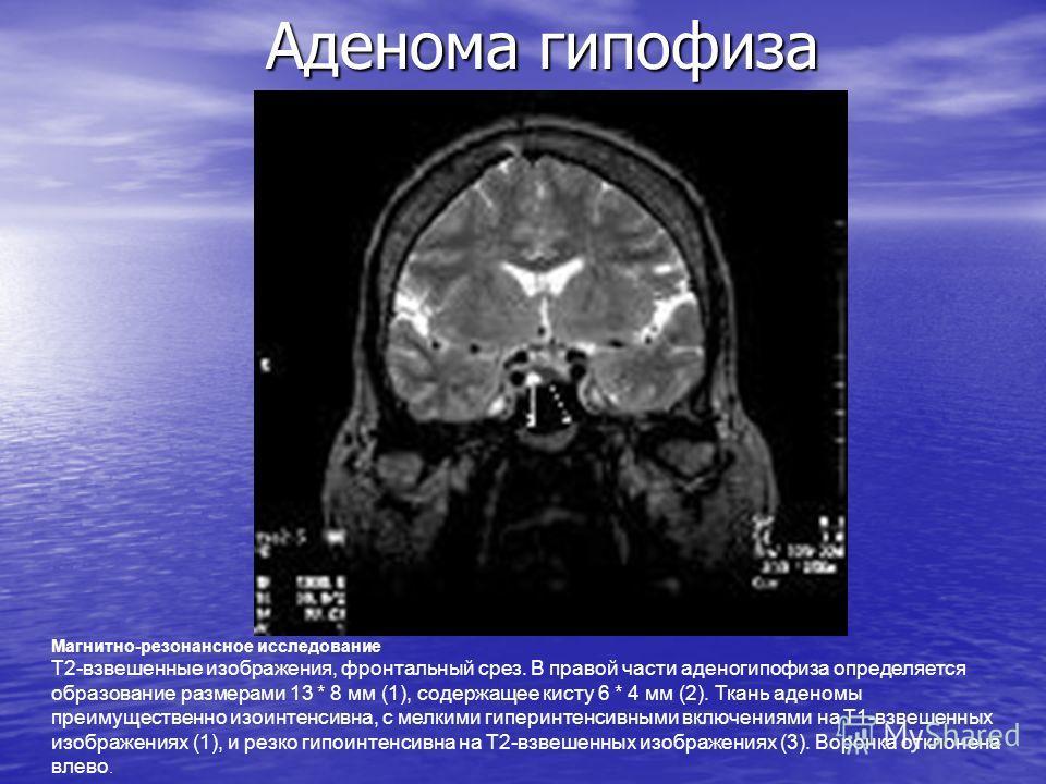 Аденома гипофиза Магнитно-резонансное исследование Т2-взвешенные изображения, фронтальный срез. В правой части аденогипофиза определяется образование размерами 13 * 8 мм (1), содержащее кисту 6 * 4 мм (2). Ткань аденомы преимущественно изоинтенсивна,