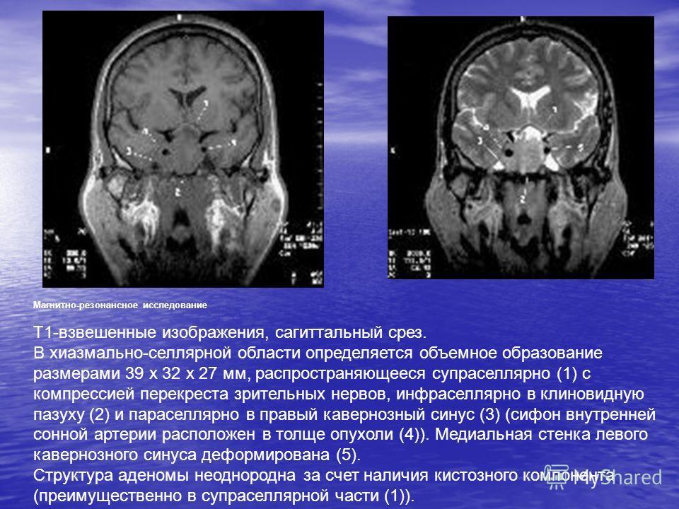 Магнитно-резонансное исследование Т1-взвешенные изображения, сагиттальный срез. В хиазмально-селлярной области определяется объемное образование размерами 39 х 32 х 27 мм, распространяющееся супраселлярно (1) с компрессией перекреста зрительных нерво