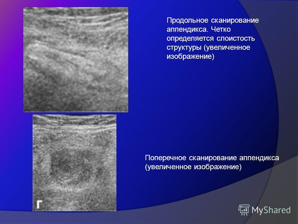 Продольное сканирование аппендикса. Четко определяется слоистость структуры (увеличенное изображение) Поперечное сканирование аппендикса (увеличенное изображение)