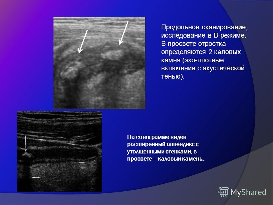 На сонограмме виден расширенный аппендикс с утолщенными стенками, в просвете – каловый камень. Продольное сканирование, исследование в В-режиме. В просвете отростка определяются 2 каловых камня (эхо-плотные включения с акустической тенью).