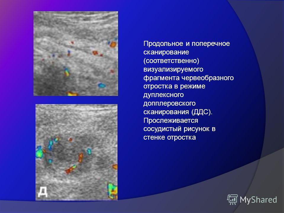 Продольное и поперечное сканирование (соответственно) визуализируемого фрагмента червеобразного отростка в режиме дуплексного допплеровского сканирования (ДДС). Прослеживается сосудистый рисунок в стенке отростка